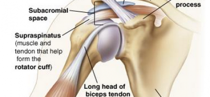 Shoulder Pain. The first steps to combat pain