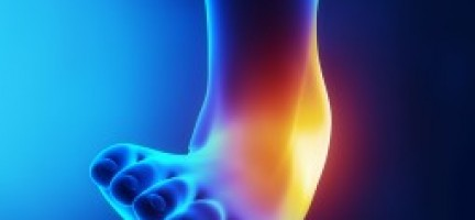 Ankle Pain – Physiotherapy Can Help