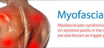 WHAT IS MYOFASCIAL PAIN…?