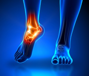 orthotics dublin