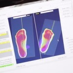 Foot Scan and Orthotic Assessment