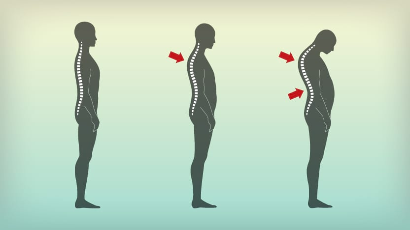 Clinical Pilates For Kyphosis